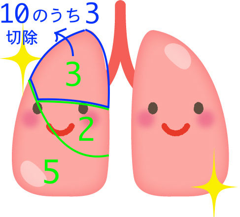 【肺がん手術】高齢の父が右肺の一部切除手術を受けたよ!【45日経過】